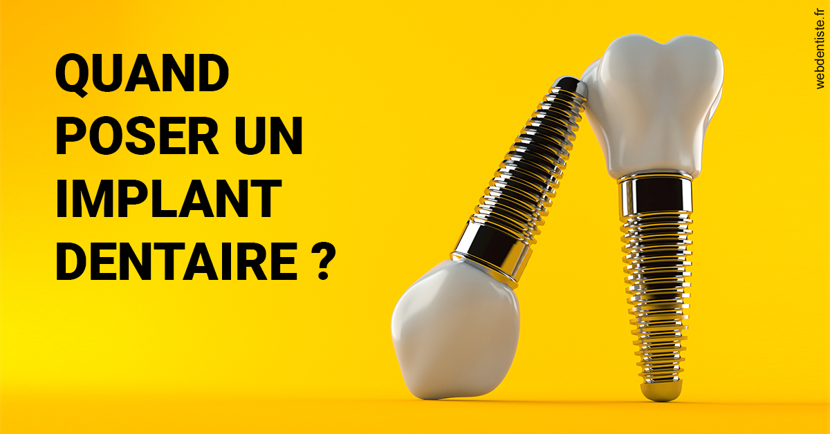 https://scp-cabinet-dentaire-drs-abehsera.chirurgiens-dentistes.fr/Les implants 2