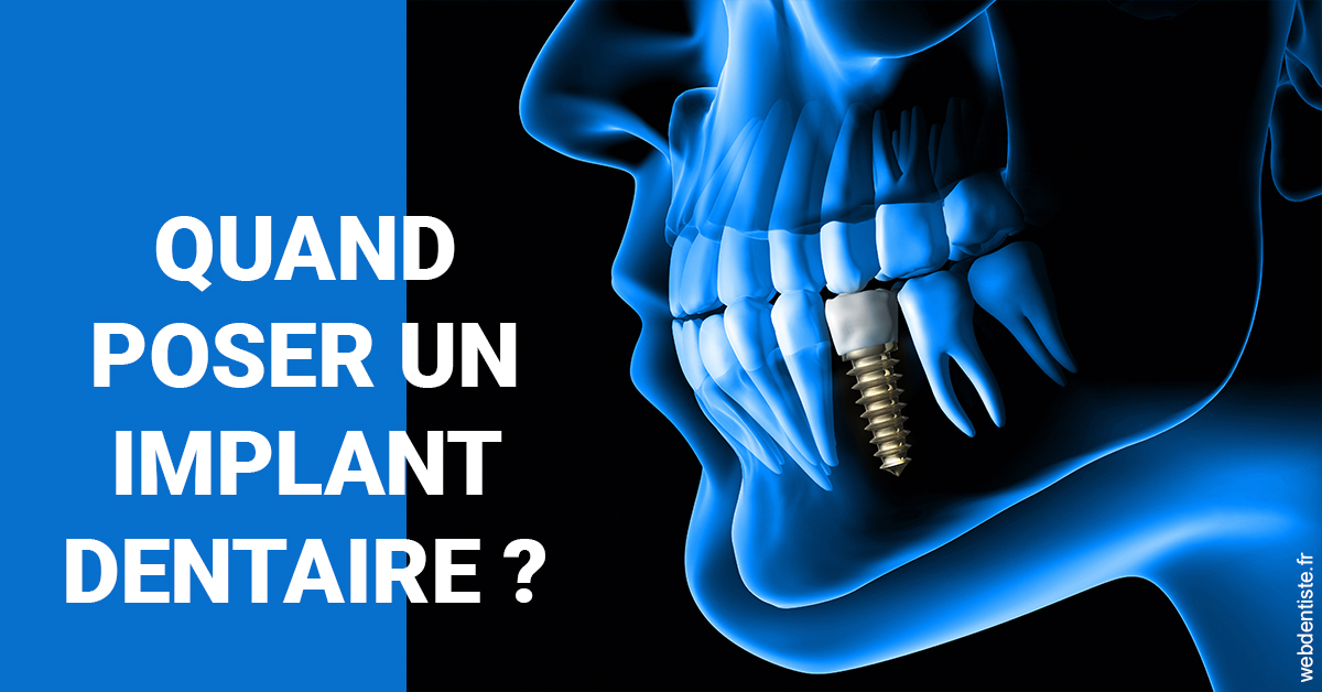 https://scp-cabinet-dentaire-drs-abehsera.chirurgiens-dentistes.fr/Les implants 1